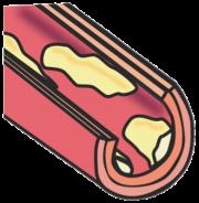 高血圧性腎硬化症